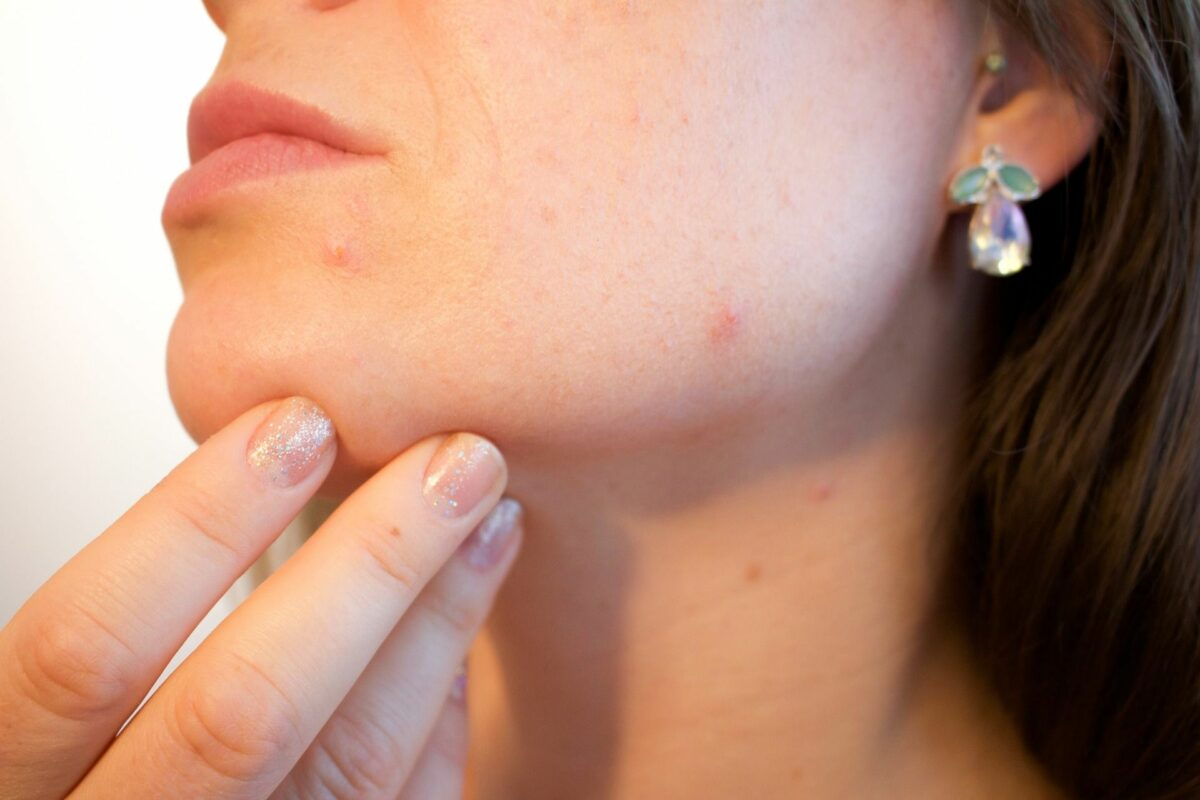 Tips voor mooie huid van huidtherapeut Eva.